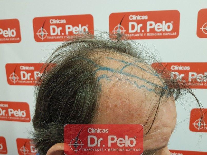 [Imagen: cirugia-capilar-dr-pelo-sevilla-badajoz-...rida_6.jpg]