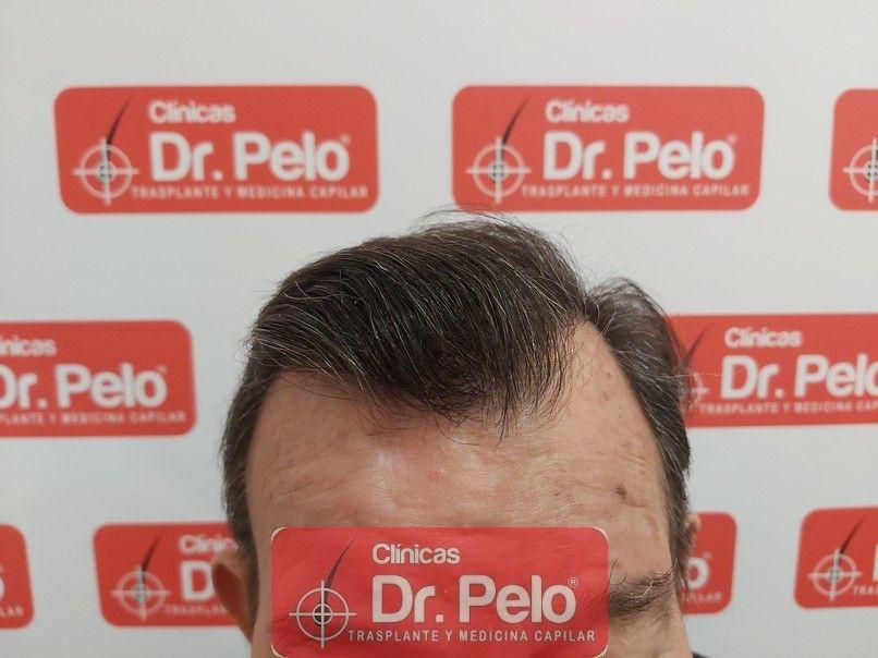 [Imagen: cirugia-capilar-dr-pelo-sevilla-badajoz-...rida_7.jpg]