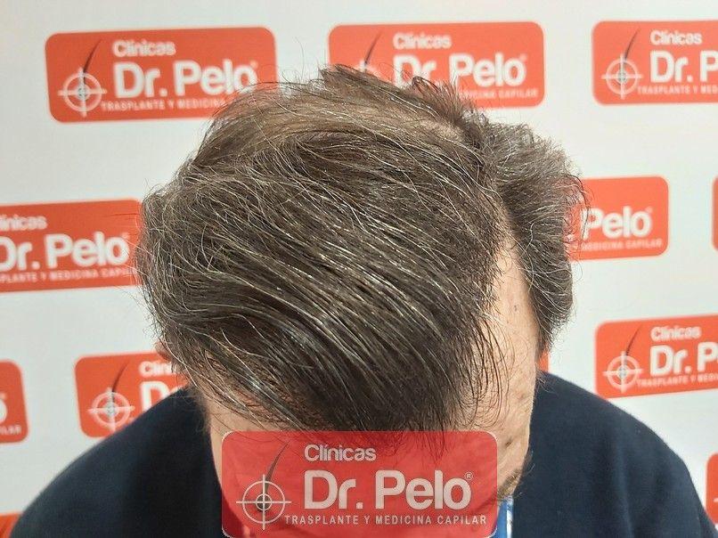 [Imagen: cirugia-capilar-dr-pelo-sevilla-badajoz-...rida_8.jpg]