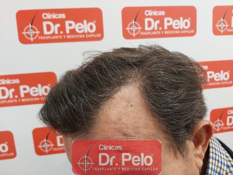 [Imagen: cirugia-capilar-dr-pelo-sevilla-badajoz-...rida_9.jpg]