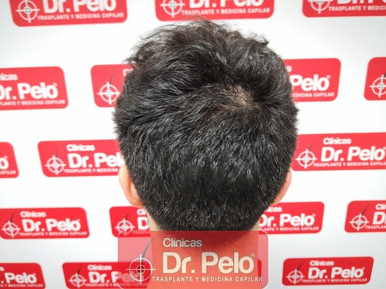 [Imagen: reconstruccion-cirugia-capilar-dr-pelo-s...ida_11.jpg]