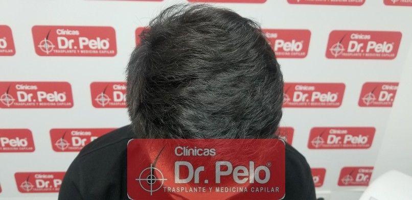 [Imagen: reconstruccion-cirugia-capilar-dr-pelo-s...ida_14.jpg]