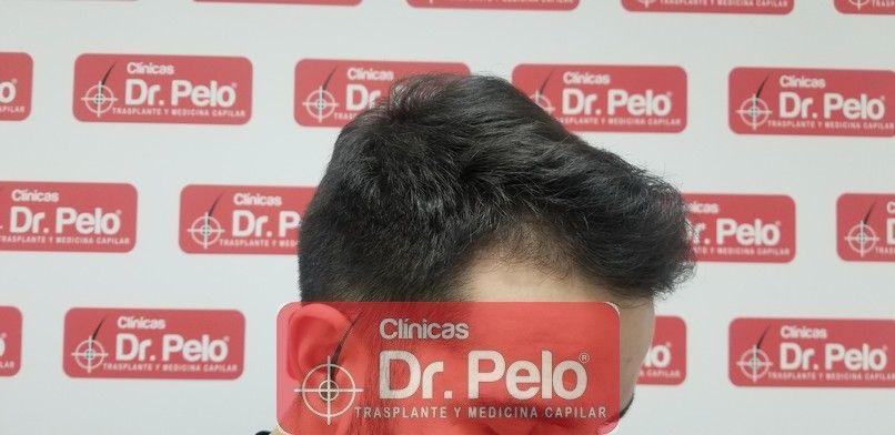 [Imagen: reconstruccion-cirugia-capilar-dr-pelo-s...ida_16.jpg]