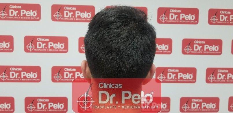 [Imagen: reconstruccion-cirugia-capilar-dr-pelo-s...ida_17.jpg]