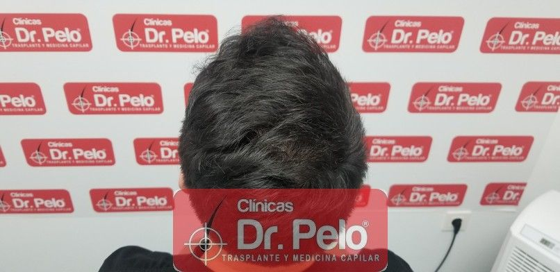 [Imagen: reconstruccion-cirugia-capilar-dr-pelo-s...ida_18.jpg]