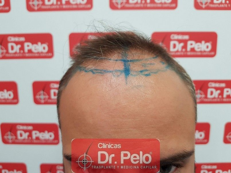 [Imagen: reconstruccion-cirugia-capilar-dr-pelo-s...rida_2.jpg]