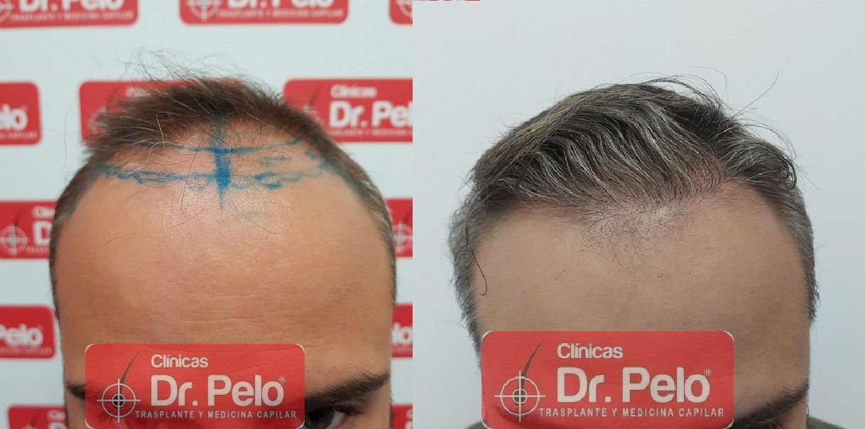 [Imagen: reconstruccion-cirugia-capilar-dr-pelo-s...ida_20.jpg]