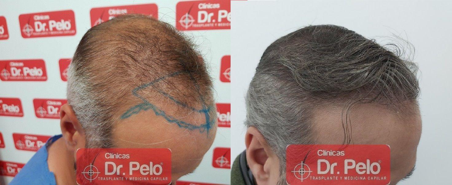 [Imagen: reconstruccion-cirugia-capilar-dr-pelo-s...ida_21.jpg]