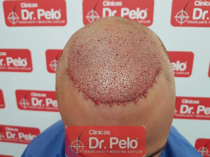 [Imagen: reconstruccion-cirugia-capilar-dr-pelo-s...rida_6.jpg]