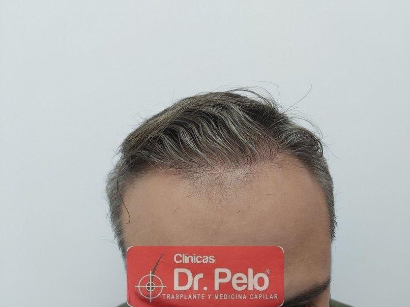 [Imagen: reconstruccion-cirugia-capilar-dr-pelo-s...rida_7.jpg]