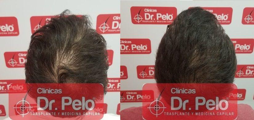 [Imagen: tratamiento-capilar-dr-pelo-sevilla-bada...ida_21.jpg]