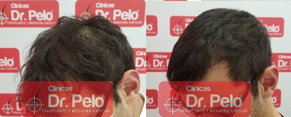 [Imagen: tratamiento-capilar-dr-pelo-sevilla-bada...ida_22.jpg]