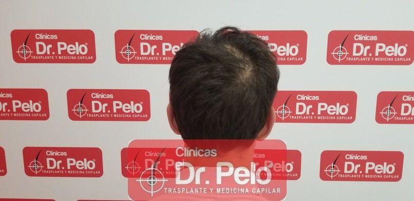 [Imagen: tratamiento-capilar-dr-pelo-sevilla-bada...rida_4.jpg]