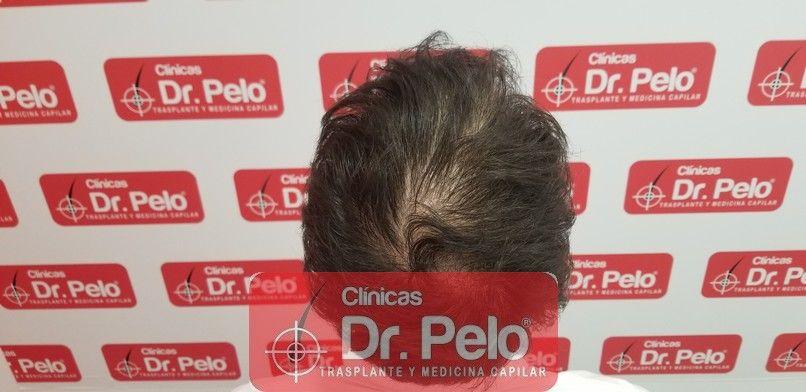 [Imagen: tratamiento-capilar-dr-pelo-sevilla-bada...rida_5.jpg]