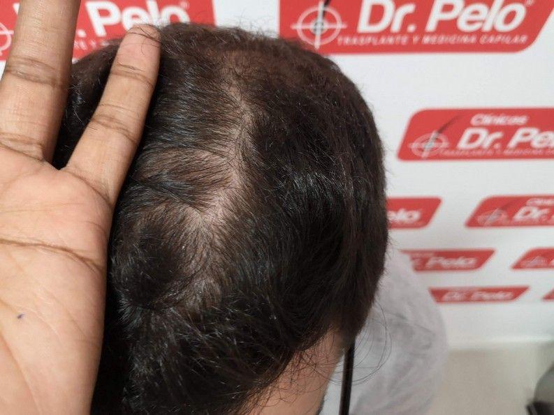 [Imagen: tratamiento-capilar-dr-pelo-sevilla-bada...ida_10.jpg]