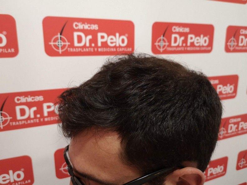 [Imagen: tratamiento-capilar-dr-pelo-sevilla-bada...ida_11.jpg]