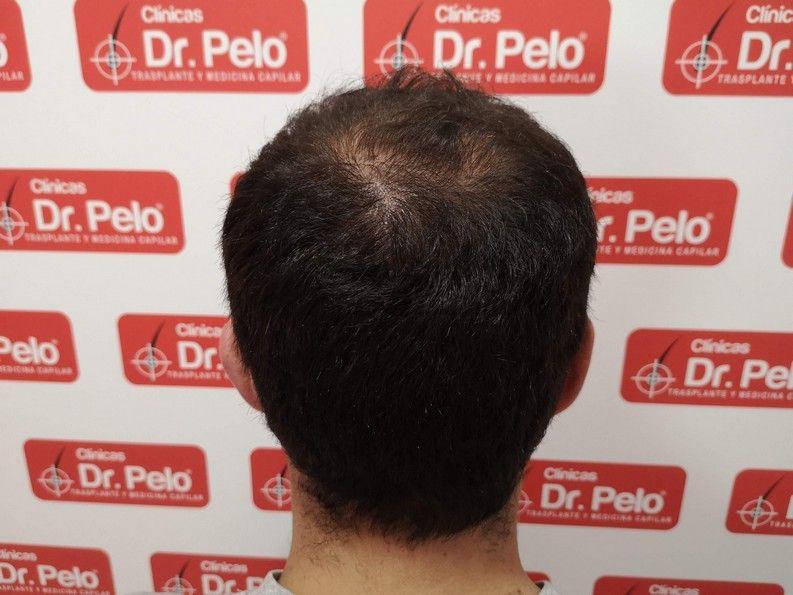 [Imagen: tratamiento-capilar-dr-pelo-sevilla-bada...ida_12.jpg]