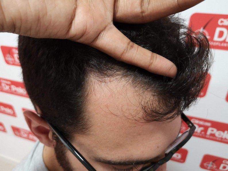 [Imagen: tratamiento-capilar-dr-pelo-sevilla-bada...ida_15.jpg]