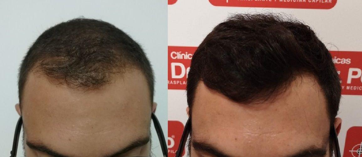 [Imagen: tratamiento-capilar-dr-pelo-sevilla-bada...ida_20.jpg]