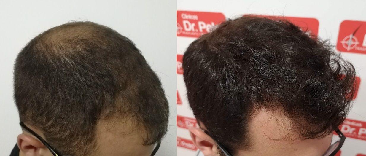 [Imagen: tratamiento-capilar-dr-pelo-sevilla-bada...ida_23.jpg]