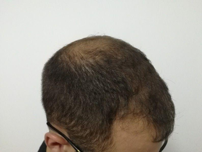 [Imagen: tratamiento-capilar-dr-pelo-sevilla-bada...rida_7.jpg]