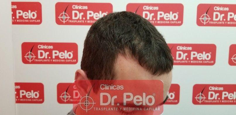 [Imagen: tratamiento-capilar-dr-pelo-sevilla-bada...a_10-1.jpg]
