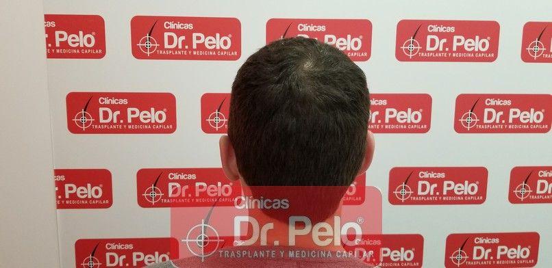 [Imagen: tratamiento-capilar-dr-pelo-sevilla-bada...a_11-1.jpg]