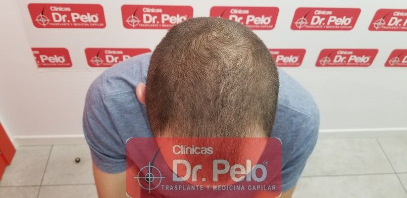[Imagen: tratamiento-capilar-dr-pelo-sevilla-bada...da_2-1.jpg]