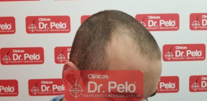 [Imagen: tratamiento-capilar-dr-pelo-sevilla-bada...da_3-1.jpg]