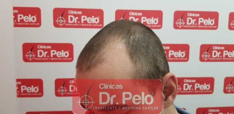 [Imagen: tratamiento-capilar-dr-pelo-sevilla-bada...da_4-1.jpg]