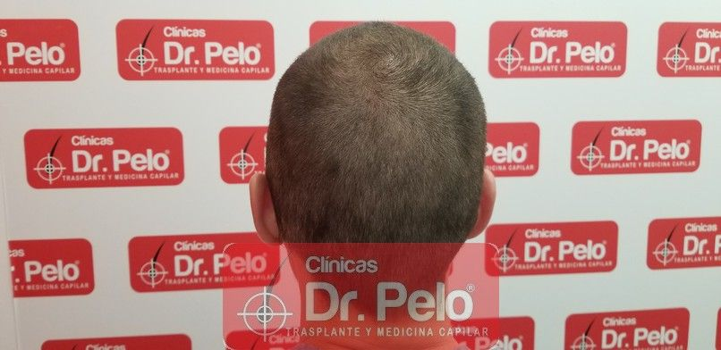 [Imagen: tratamiento-capilar-dr-pelo-sevilla-bada...da_5-1.jpg]