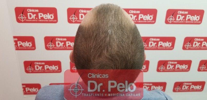 [Imagen: tratamiento-capilar-dr-pelo-sevilla-bada...da_6-1.jpg]