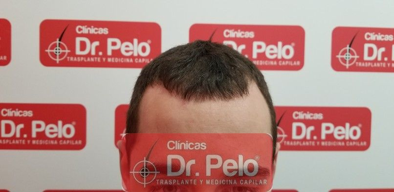 [Imagen: tratamiento-capilar-dr-pelo-sevilla-bada...da_7-1.jpg]