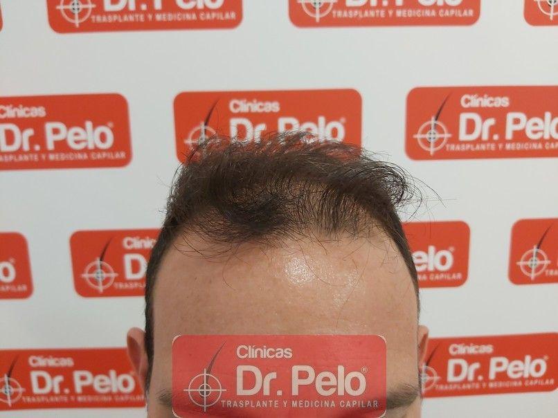 [Imagen: tratamiento-capilar-dr-pelo-sevilla-bada...merida.jpg]