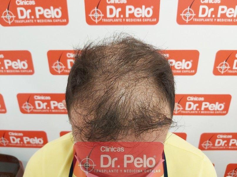 [Imagen: tratamiento-capilar-dr-pelo-sevilla-bada...rida_2.jpg]