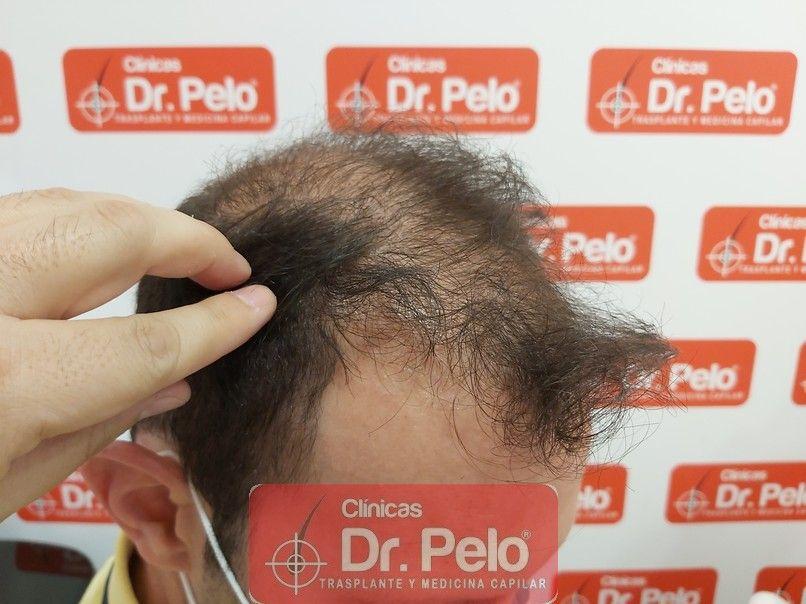 [Imagen: tratamiento-capilar-dr-pelo-sevilla-bada...rida_6.jpg]