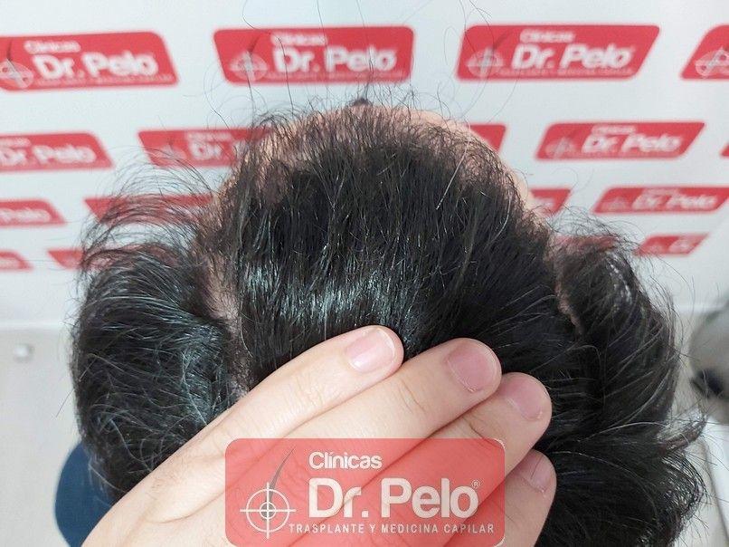 [Imagen: tratamiento-capilar-dr-pelo-sevilla-bada...ida_13.jpg]