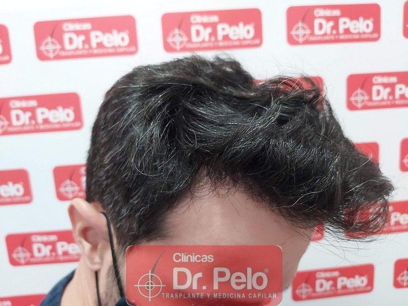 [Imagen: tratamiento-capilar-dr-pelo-sevilla-bada...ida_14.jpg]
