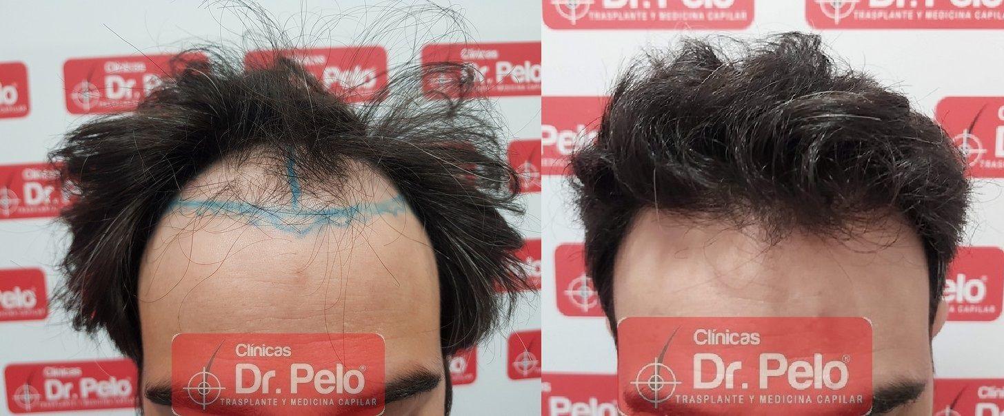 [Imagen: tratamiento-capilar-dr-pelo-sevilla-bada...ida_16.jpg]