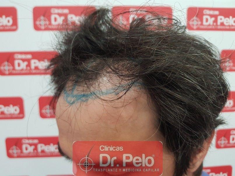 [Imagen: tratamiento-capilar-dr-pelo-sevilla-bada...rida_3.jpg]