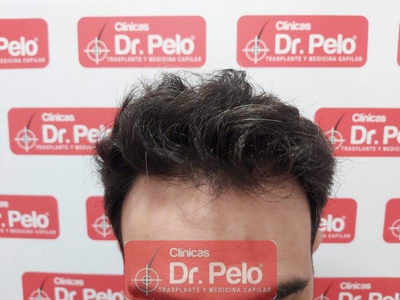 [Imagen: tratamiento-capilar-dr-pelo-sevilla-bada...rida_9.jpg]