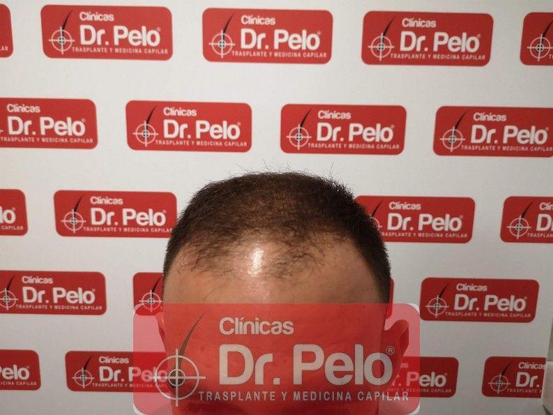 [Imagen: injerto-capilar-tratamiento-sevilla-bada...lo_8-2.jpg]